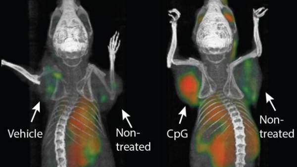 Una inyección elimina todo rastro de tumor